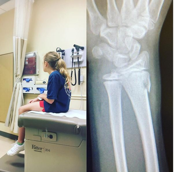 Broken Arm Cheerleading Injury